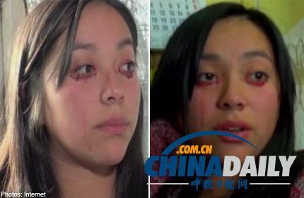 [新聞] 智利少女患罕見疾病 眼睛流血不流淚